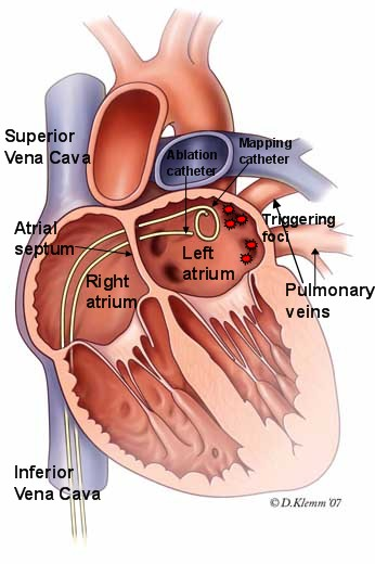 What happens during atrial flutter ablation surgery?