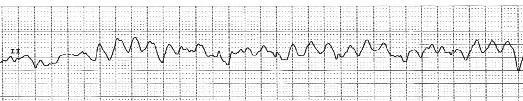 EKG-VF