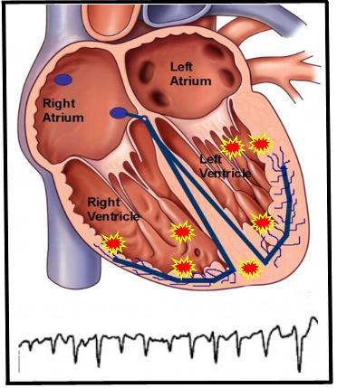 Polymorphic-VT-with-EKG