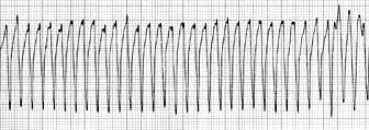 VT-EKG