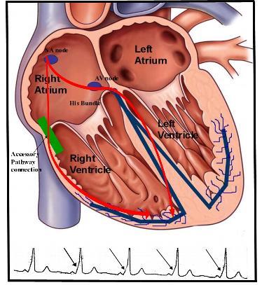 WPW-Fusion-EKG
