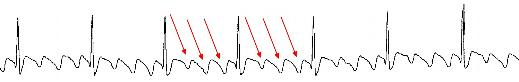 atrial-flutter-strip