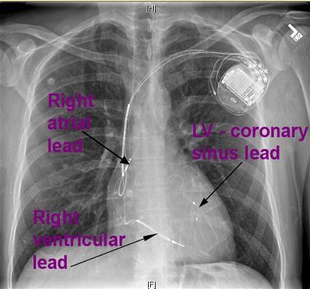 bivicd+x-ray