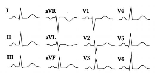 p-wave-morphology-sinus