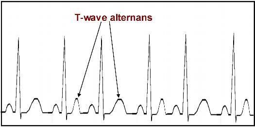 t-Wave-Alternans-TWA